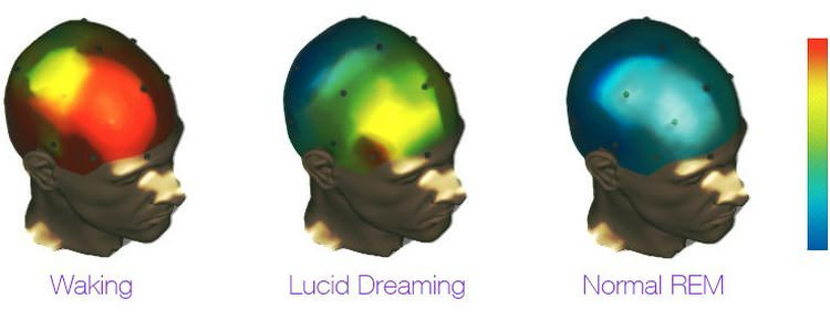 Lucid Dreams Under fMRI